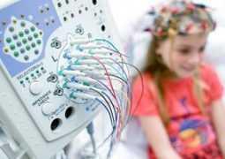 Криптогенная фокальная эпилепсия